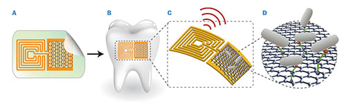 A: Graphene is printed onto bioresorbable silk and contacts are formed containing a wireless coil. B: Biotransfer of the sensor onto the surface of a tooth. C: Magnified schematic of the sensing element, illustrating wireless readout. D: Binding of pathogenic bacteria by peptides on the graphene. illustration: manu mannoor/Nature communications
