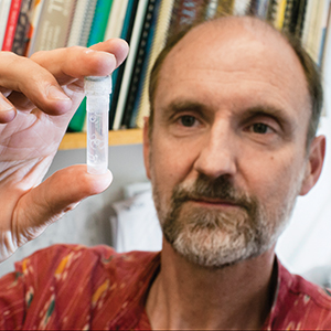 """Patrick Skelly holds up a vial of schistosome worms. """"They're quite big,"""" he notes."""