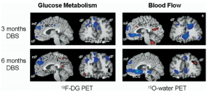 This images shows changes in oxygen and other metabolic usage in different areas of the brain following chronic DBS treatment
