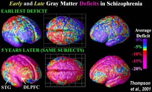 Image of gray matter loss after 5 years in the same subjects. http://users.loni.usc.edu/~thompson/J/5A.jpg