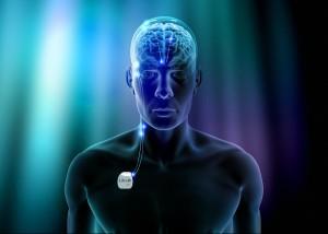 Libra-Deep-Brain-Stimulation