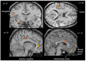 Figure 2: Neural Activation during memory retrieval in emotional context Credit: Smith et al., 2004