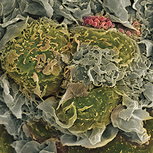 Breast cancer cells divide rapidly in a chaotic manner, leading to a ragged appearance when amplified.